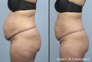 Body Fx Envy Skin Clinic