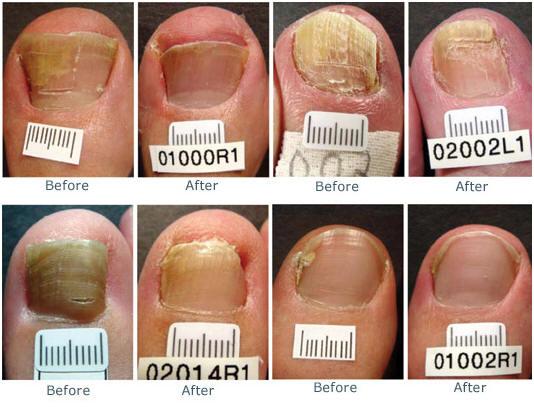 Home Remedy For Toenail Fungus Vicks Vapor Rub – Nail Ftempo